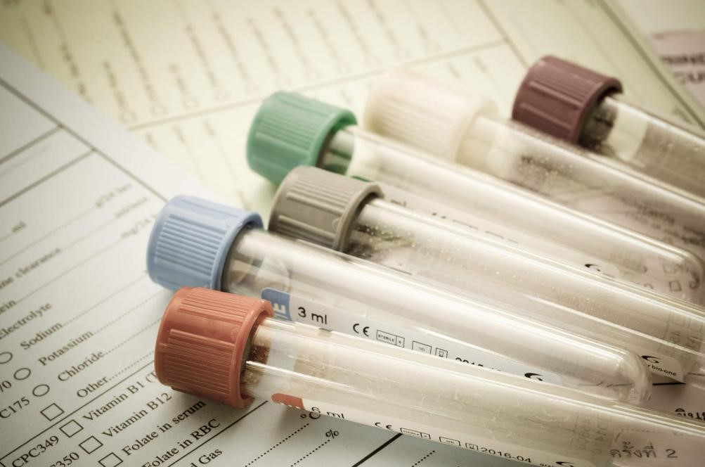 4 Medical Tests you Should Have Every Year